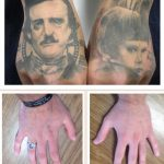 two human faces tattoos tattoo removal back of hands