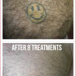 chest yellow and black ink laser tattoo removal in 8 treatments