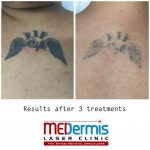medermis laser tattoo removal in 3 treatments