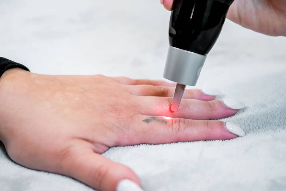 laser tattoo removal on finger