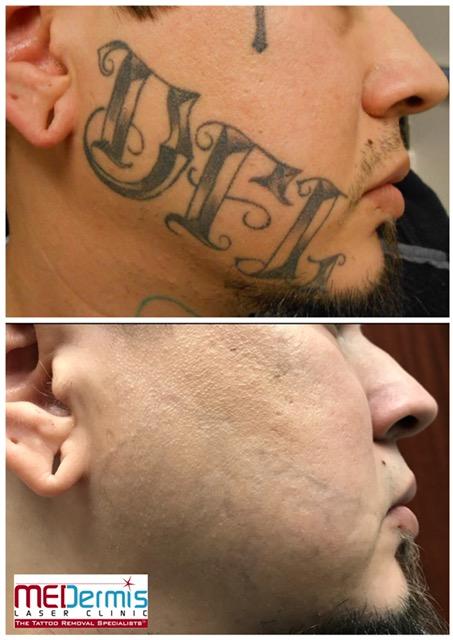 medermis san antonio laser tattoo removal in 14 treatments