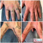 letters and symbols tattoo removal fingers