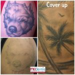 laser tattoo removal for cover up in 4 treatments