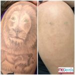Shoulder/arm laser tattoo removal in 2 treatments