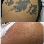 black arm tattoo laser tattoo removal in 5 treatments