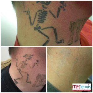 black ink on neck laser tattoo removal in 6 treatments