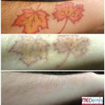 Before & After 6 laser treatments at MEDermis Laser Clinic
