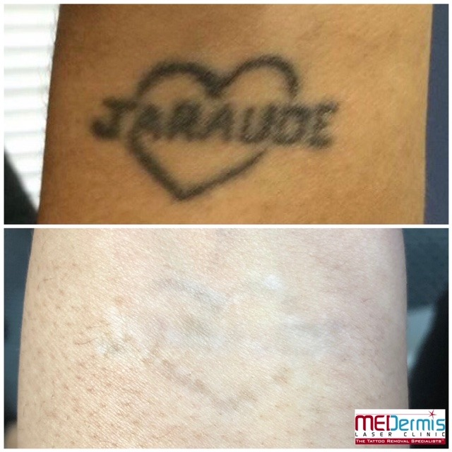 Before and After picture of 3 laser treaments