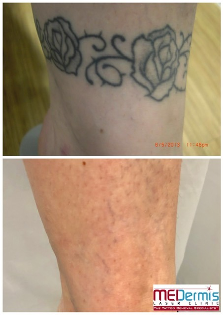 black ankle floral tattoo removal before and after