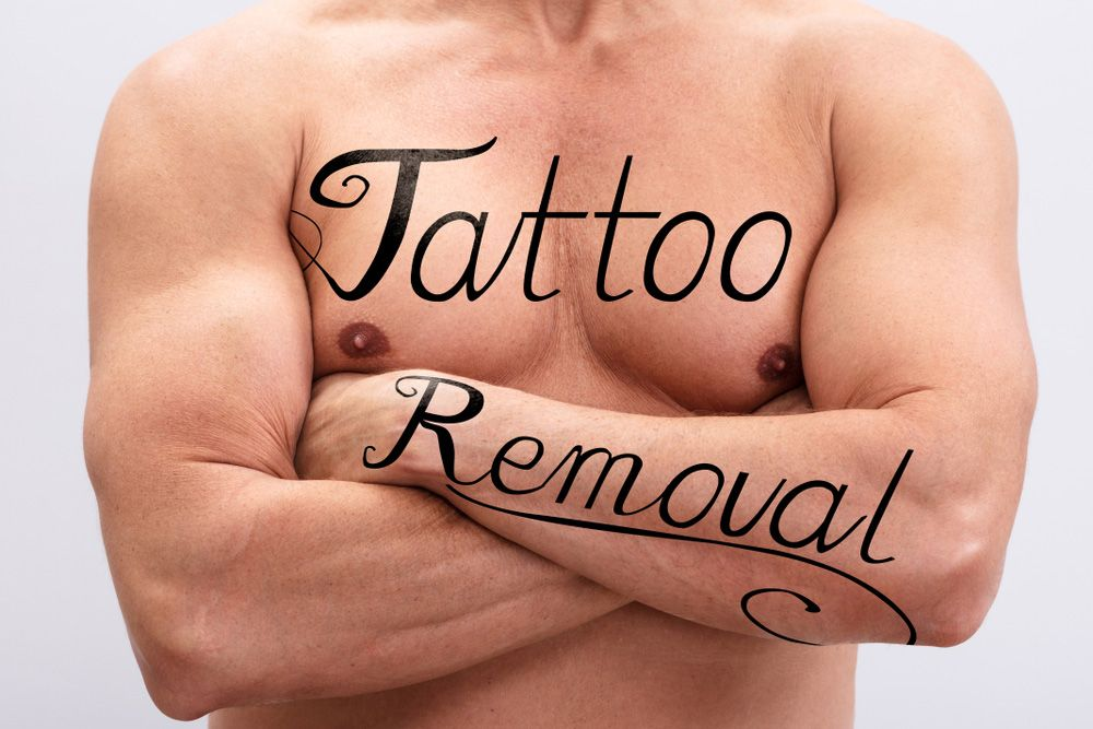 Bare Chested Main with Tattoo Removal Methods